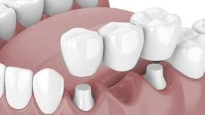 Bridge dentaire Dr Salama dentiste 92