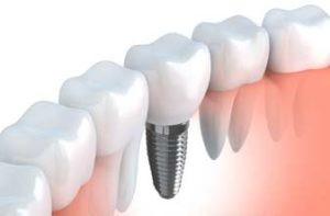 Implant dentaire Levallois Perret dr Salama